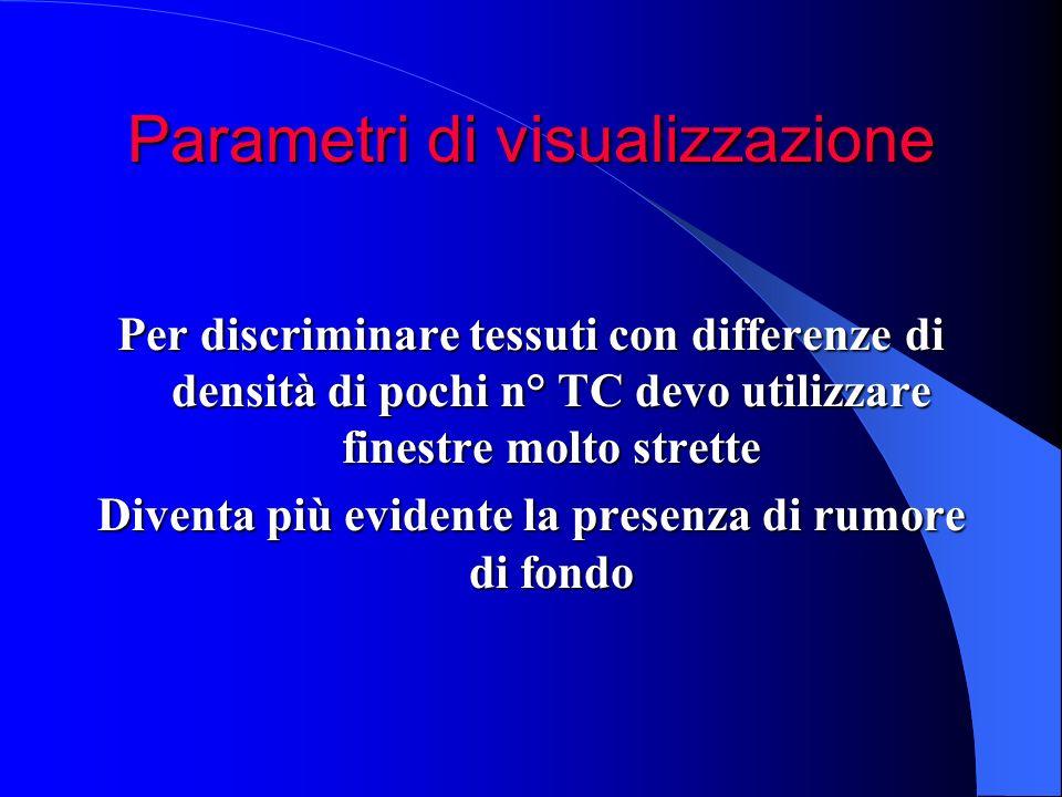 Parametri di visualizzazione Per discriminare tessuti con differenze di densità di pochi n° TC devo utilizzare finestre molto strette Diventa più evid