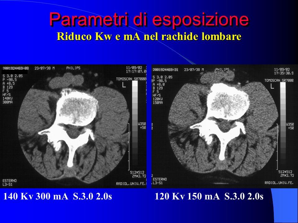 Parametri di esposizione 140 Kv 300 mA S.3.0 2.0s120 Kv 150 mA S.3.0 2.0s Riduco Kw e mA nel rachide lombare