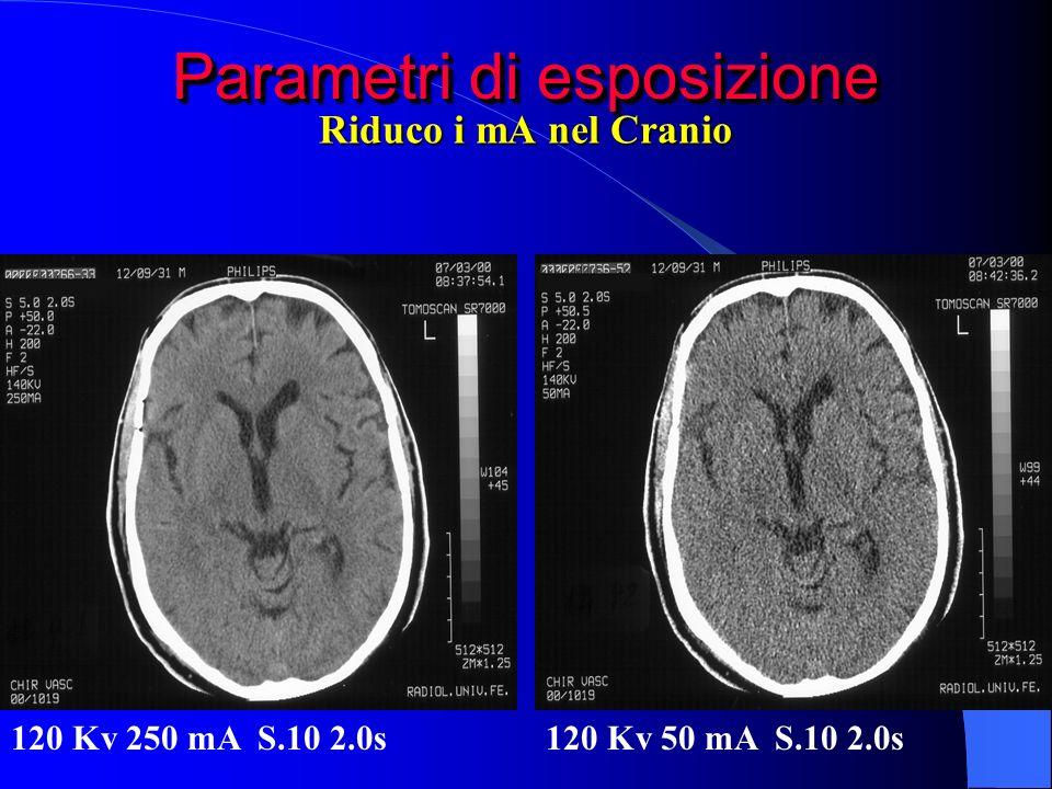 Parametri di esposizione 120 Kv 250 mA S.10 2.0s120 Kv 50 mA S.10 2.0s Riduco i mA nel Cranio