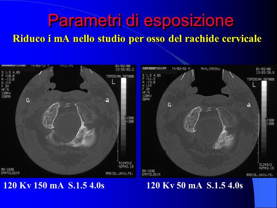 Parametri di esposizione 120 Kv 150 mA S.1.5 4.0s120 Kv 50 mA S.1.5 4.0s Riduco i mA nello studio per osso del rachide cervicale