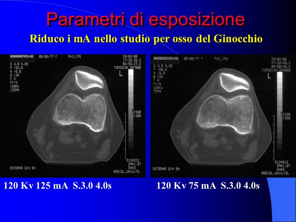 Parametri di esposizione 120 Kv 125 mA S.3.0 4.0s120 Kv 75 mA S.3.0 4.0s Riduco i mA nello studio per osso del Ginocchio