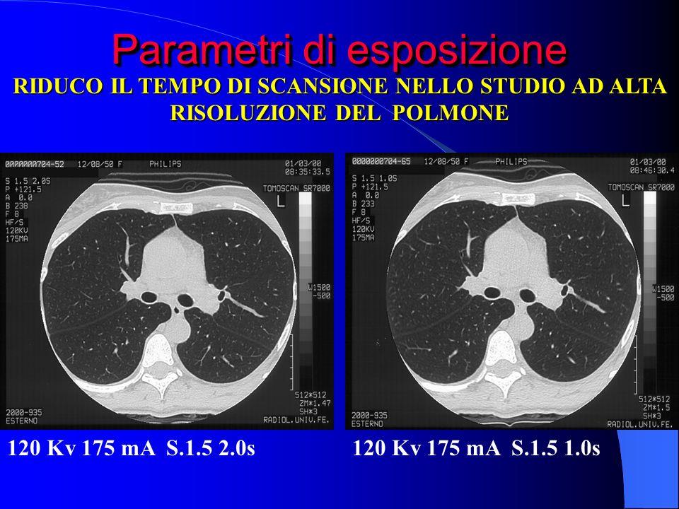 Parametri di esposizione 120 Kv 175 mA S.1.5 2.0s120 Kv 175 mA S.1.5 1.0s RIDUCO IL TEMPO DI SCANSIONE NELLO STUDIO AD ALTA RISOLUZIONE DEL POLMONE