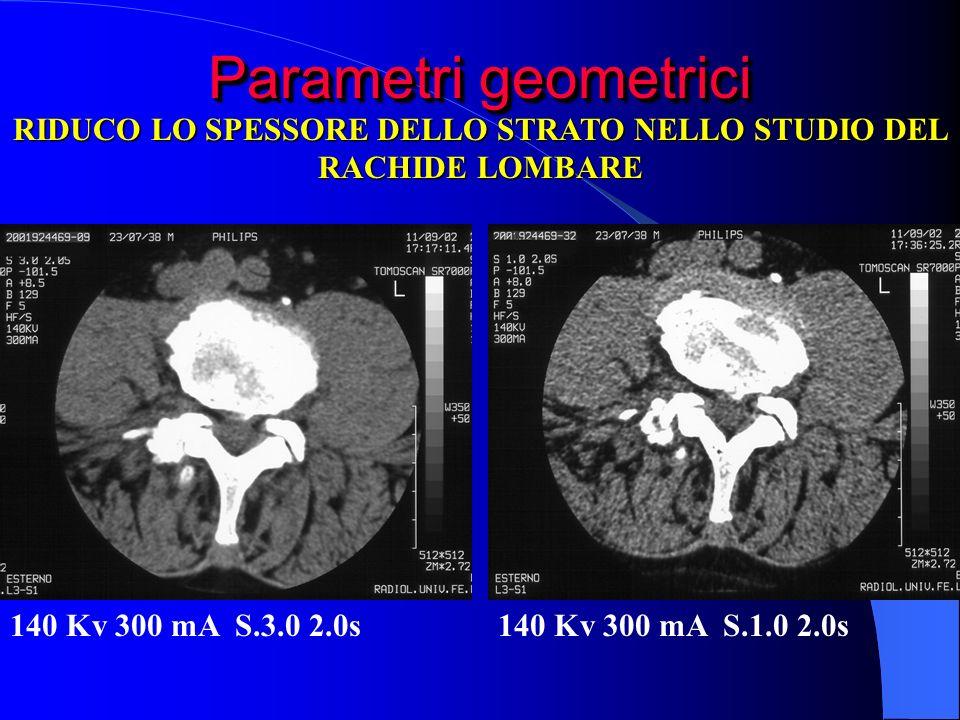 Parametri geometrici 140 Kv 300 mA S.1.0 2.0s140 Kv 300 mA S.3.0 2.0s RIDUCO LO SPESSORE DELLO STRATO NELLO STUDIO DEL RACHIDE LOMBARE