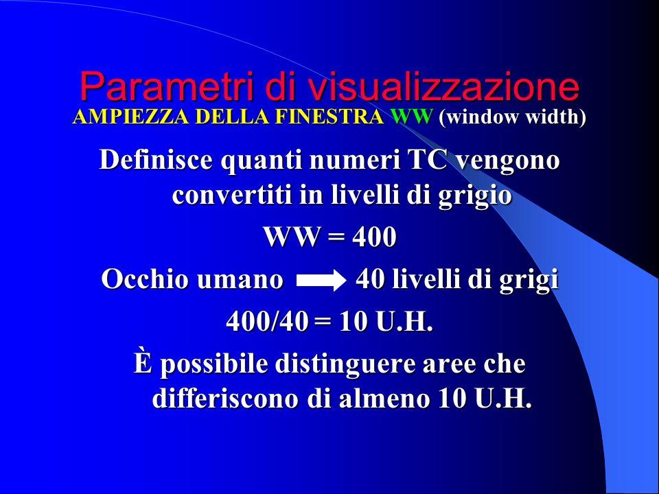 Parametri di visualizzazione Definisce quanti numeri TC vengono convertiti in livelli di grigio WW = 400 Occhio umano 40 livelli di grigi 400/40 = 10