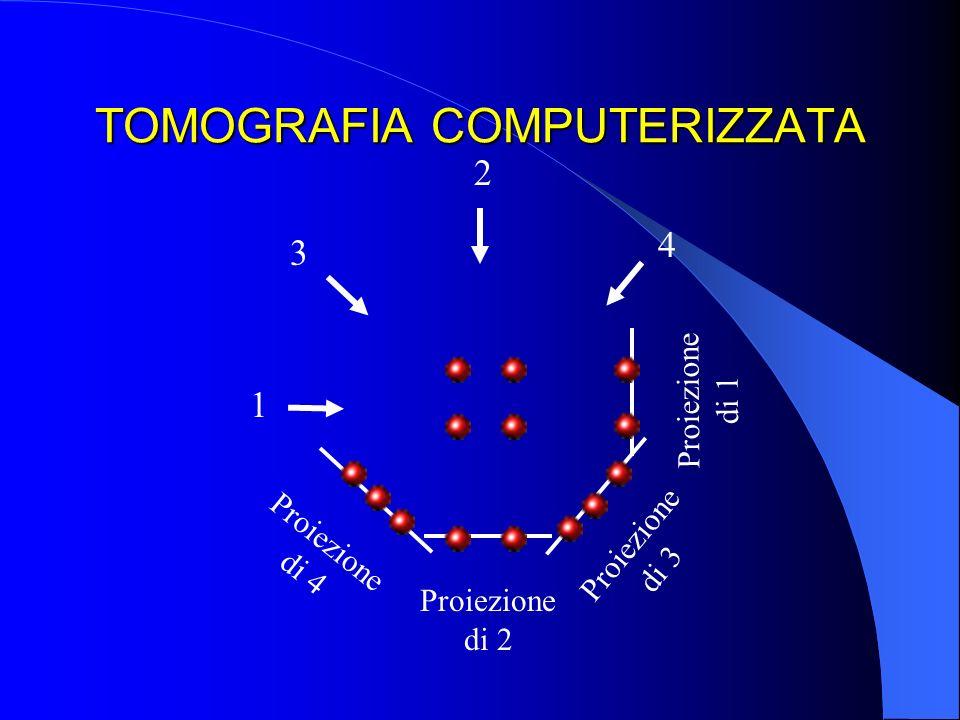 TOMOGRAFIA COMPUTERIZZATA 1 2 3 4 Proiezione di 2 Proiezione di 1 Proiezione di 4 Proiezione di 3