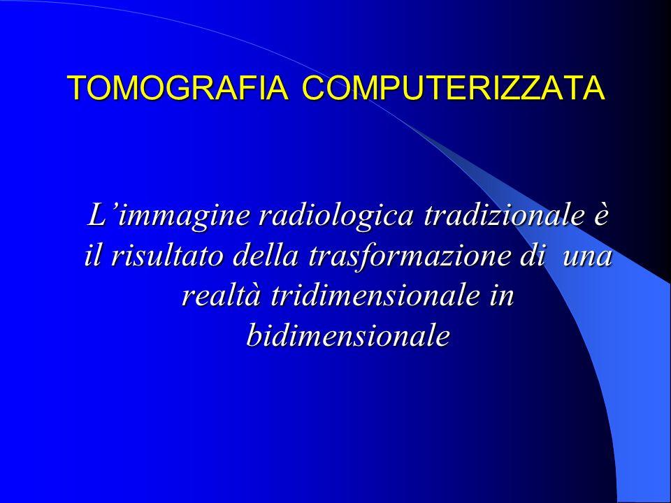 TOMOGRAFIA COMPUTERIZZATA Limmagine radiologica tradizionale è il risultato della trasformazione di una realtà tridimensionale in bidimensionale