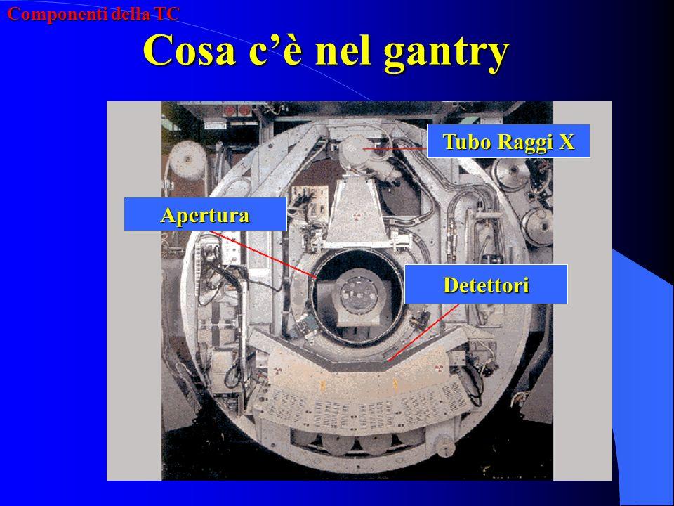 Cosa cè nel Gantry: - Generatore - Tubo Radiogeno - Collimatori - Detettori - Data Acquisition System (DAS) - Slip-Ring