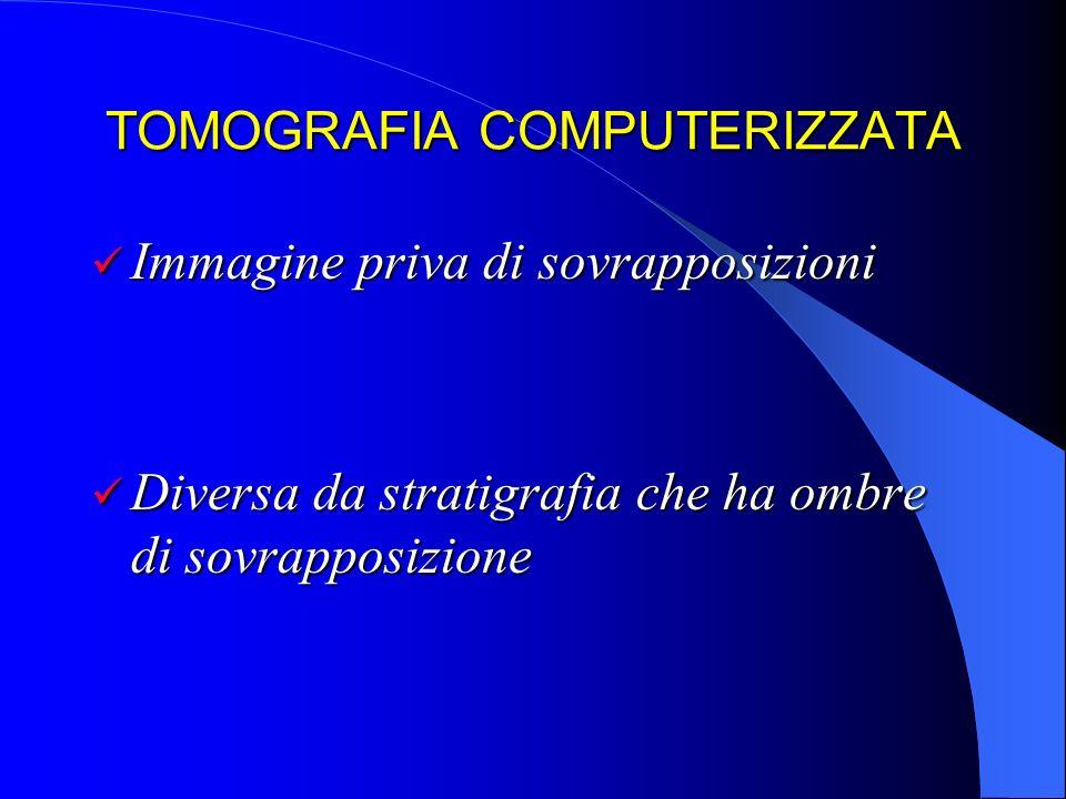 TOMOGRAFIA COMPUTERIZZATA Limmagine tradizionale è unimmagine analogica PELLICOLA CRISTALLI DI SALI DI Ag CRISTALLI DI SALI DI Ag REAZIONE CHIMICA REAZIONE CHIMICA IMMAGINE IMMAGINE