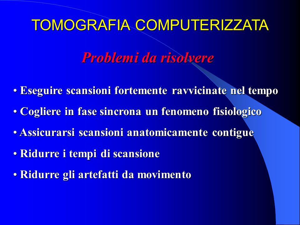 TOMOGRAFIA COMPUTERIZZATA Problemi da risolvere Eseguire scansioni fortemente ravvicinate nel tempo Eseguire scansioni fortemente ravvicinate nel temp