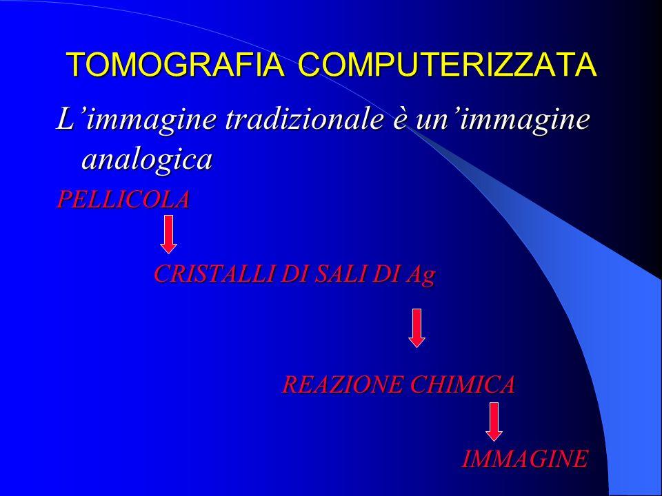 TOMOGRAFIA COMPUTERIZZATA Limmagine tradizionale è unimmagine analogica PELLICOLA CRISTALLI DI SALI DI Ag CRISTALLI DI SALI DI Ag REAZIONE CHIMICA REA