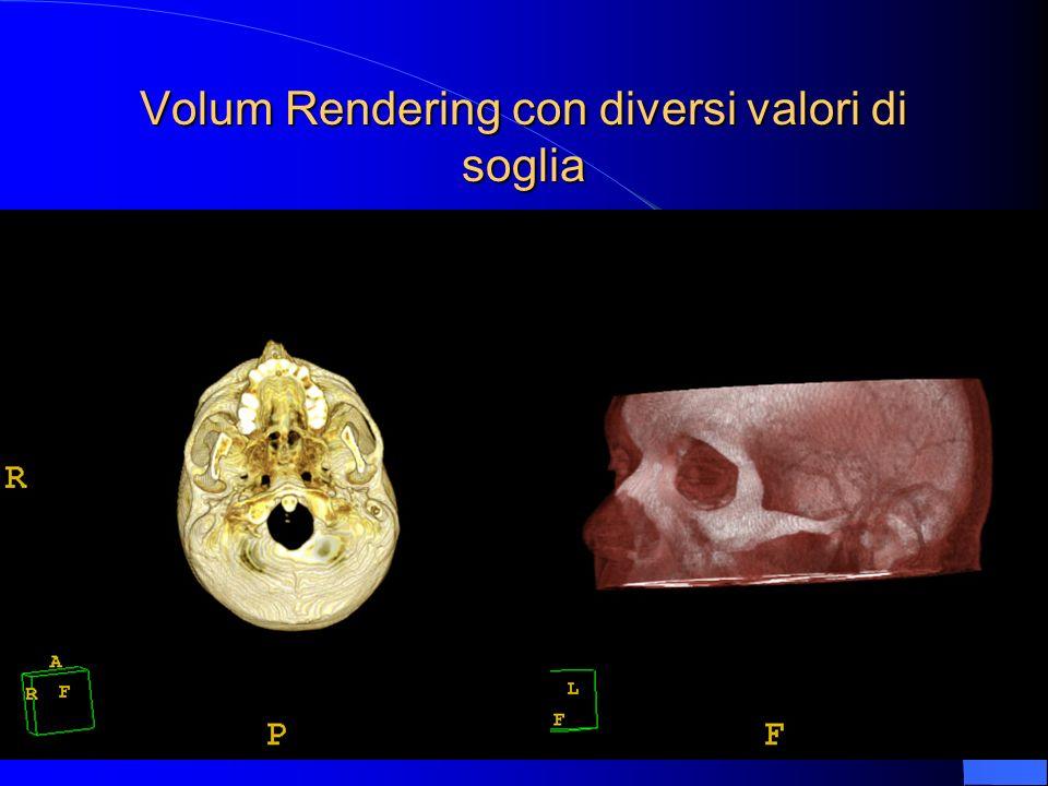 Endoscopia virtuale: carena bronchiale (a) bronchi lobari medio ed inferiore (b) ab