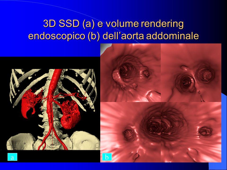 3D SSD (a) e volume rendering endoscopico (b) dellaorta addominale ab