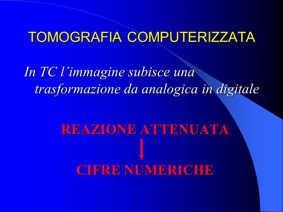 TOMOGRAFIA COMPUTERIZZATA In TC limmagine subisce una trasformazione da analogica in digitale REAZIONE ATTENUATA CIFRE NUMERICHE