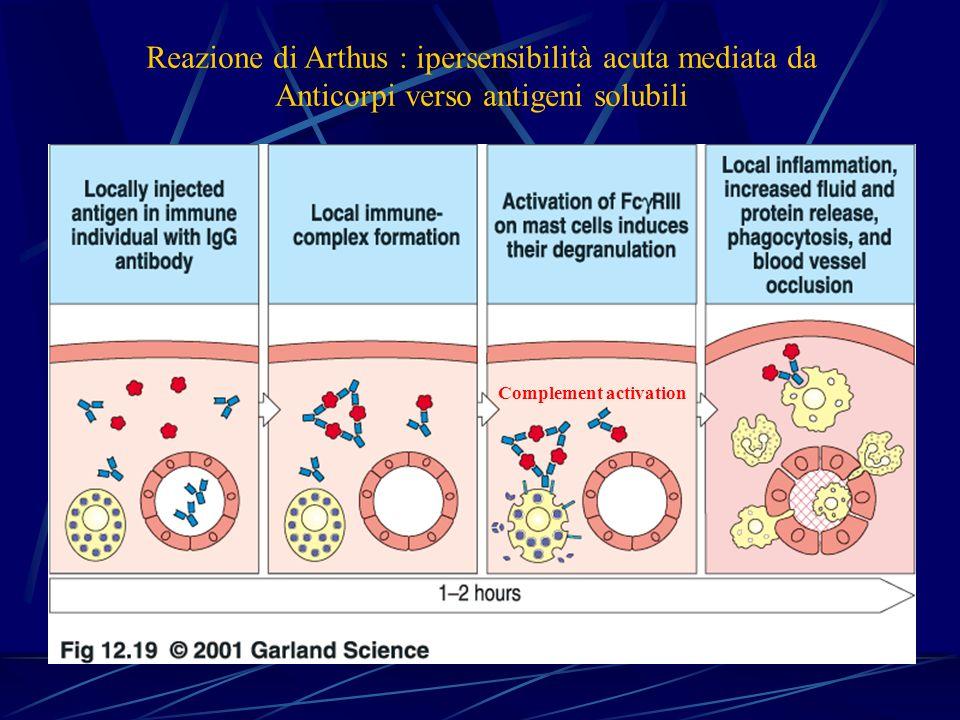 Reazione di Arthus : ipersensibilità acuta mediata da Anticorpi verso antigeni solubili Complement activation
