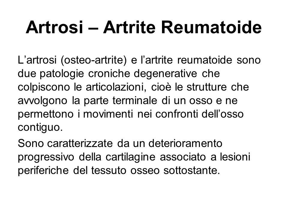 Artrosi – Artrite Reumatoide Lartrosi (osteo-artrite) e lartrite reumatoide sono due patologie croniche degenerative che colpiscono le articolazioni,