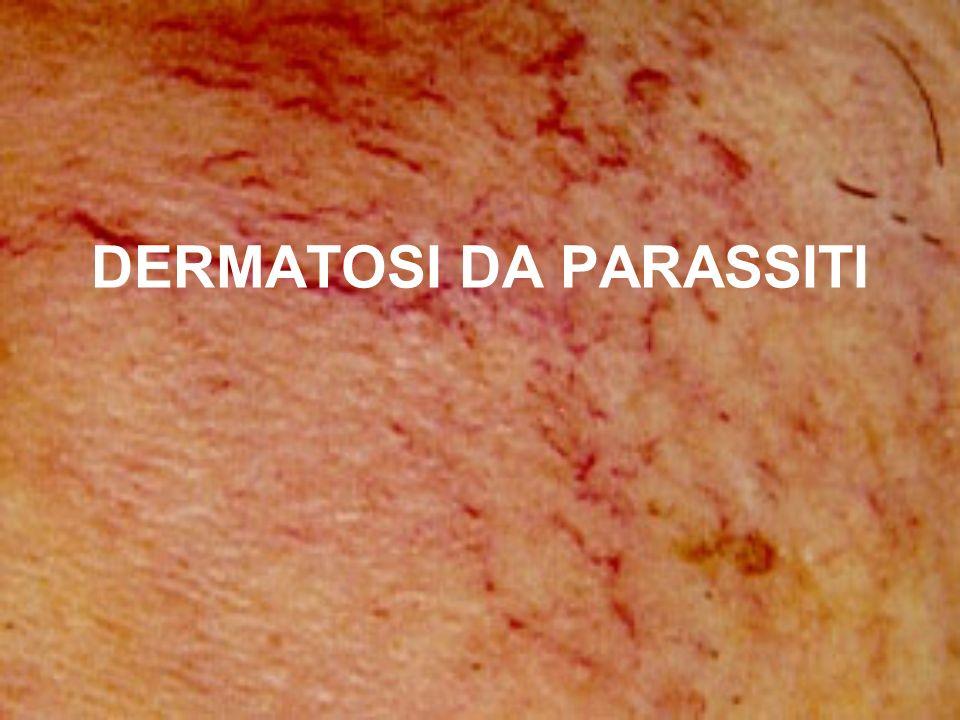 Scabbia La scabbia è una dermatosi parassitaria contagiosa provocatala un parassita animale (acaro) di dimensioni molto piccole (circa mm.0,30).