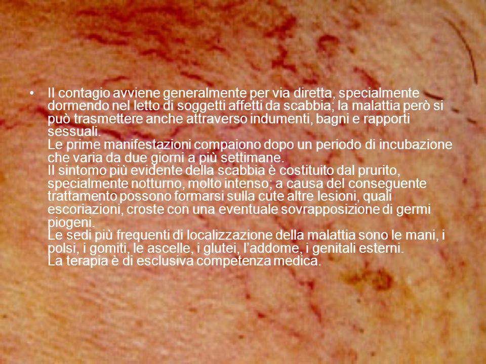 Pediculosi Pediculosi con tale nome si indica una infestazione dellorganismo da parte dei pidocchi.