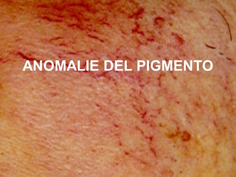ANOMALIE DEL PIGMENTO