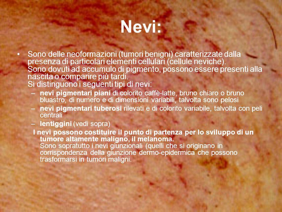 Nevi: Sono delle neoformazioni (tumori benigni) caratterizzate dalla presenza di particolari elementi cellulari (cellule neviche). Sono dovuti ad accu