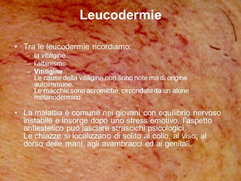 Leucodermie Tra le leucodermie ricordiamo: –la vitiligine –lalbinismo –Vitiligine Le cause della vitiligine non sono note ma di origine autoimmune. Le