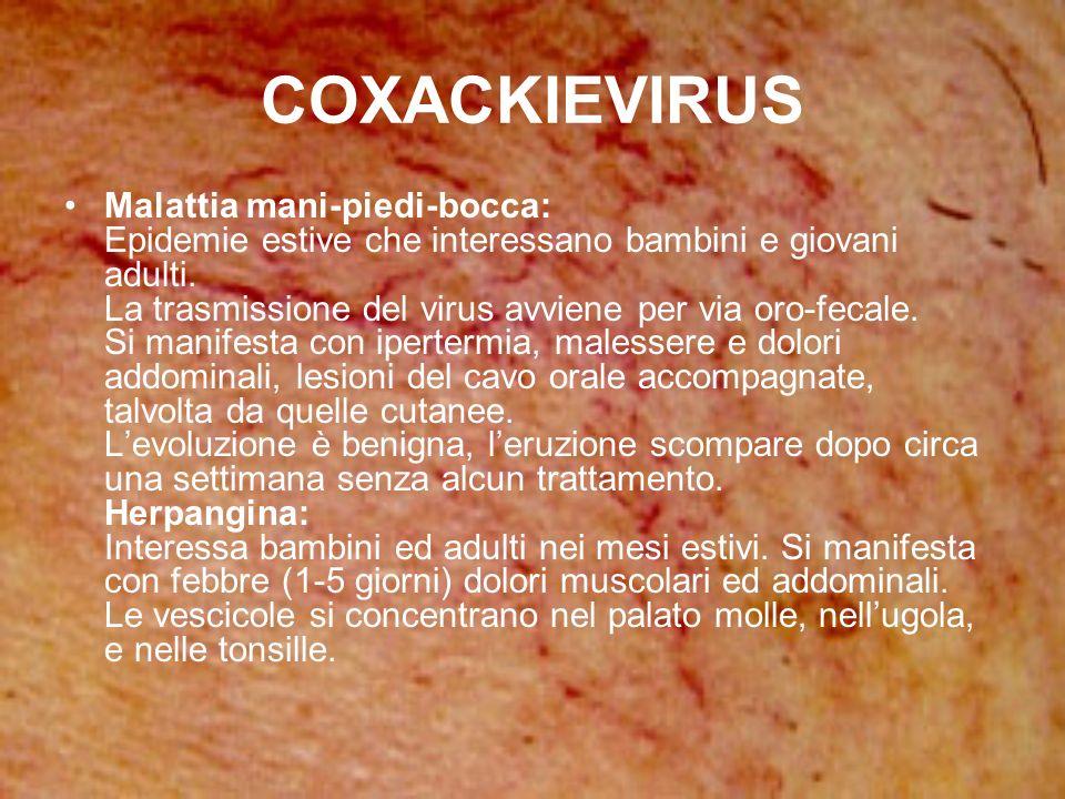 COXACKIEVIRUS Malattia mani-piedi-bocca: Epidemie estive che interessano bambini e giovani adulti. La trasmissione del virus avviene per via oro-fecal