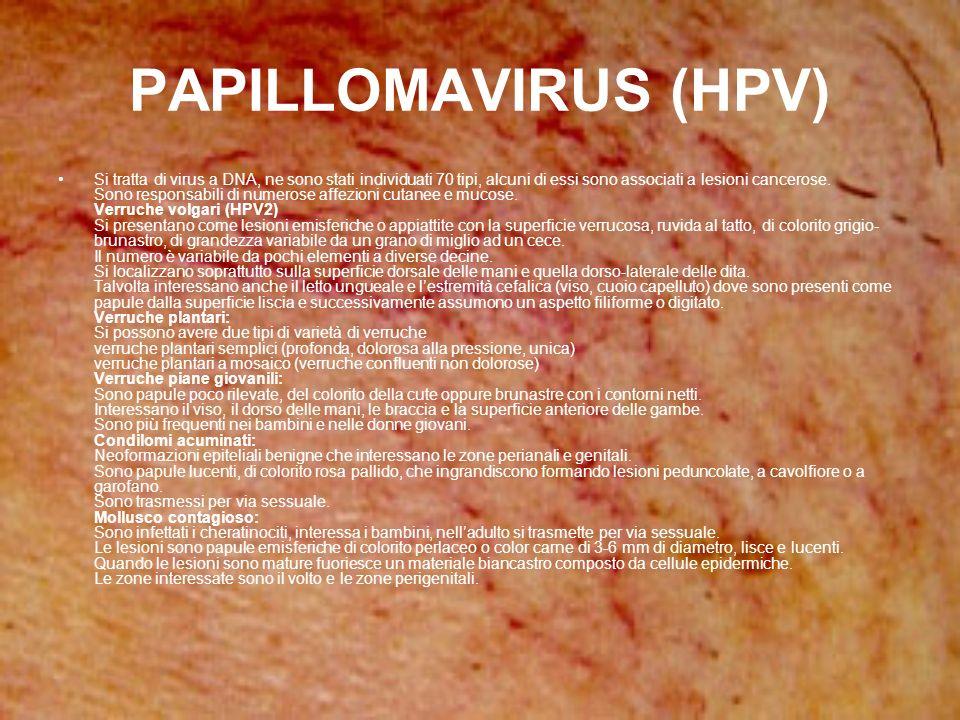 PAPILLOMAVIRUS (HPV) Si tratta di virus a DNA, ne sono stati individuati 70 tipi, alcuni di essi sono associati a lesioni cancerose. Sono responsabili