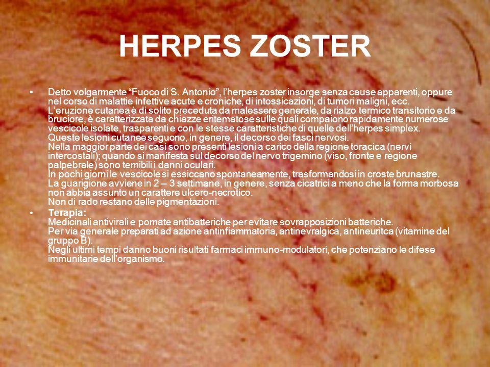HERPES ZOSTER Detto volgarmente Fuoco di S. Antonio, lherpes zoster insorge senza cause apparenti, oppure nel corso di malattie infettive acute e cron