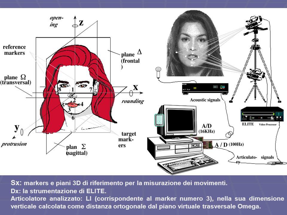 Sx: markers e piani 3D di riferimento per la misurazione dei movimenti.