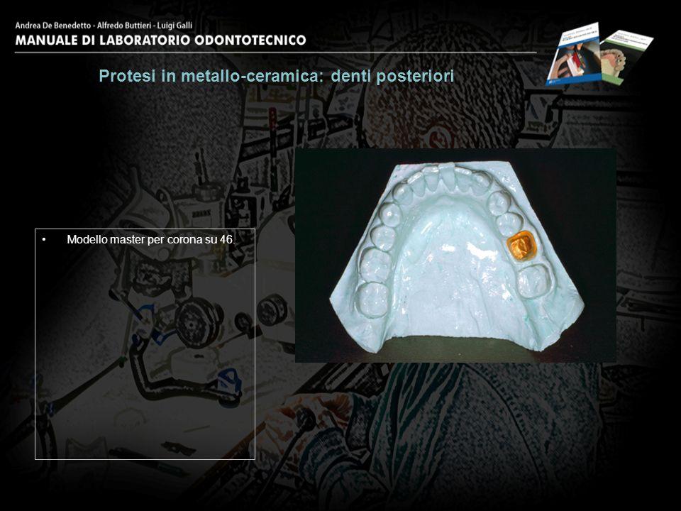 Modellazione completa in cera del primo molare inferiore.