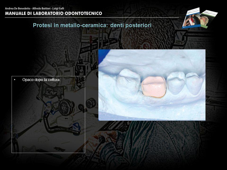 Opaco dopo la cottura. Protesi in metallo-ceramica: denti posteriori 10