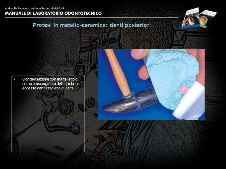 Condensazione con martelletto di corno e asciugatura del liquido in eccesso con fazzoletto di carta. Protesi in metallo-ceramica: denti posteriori 14