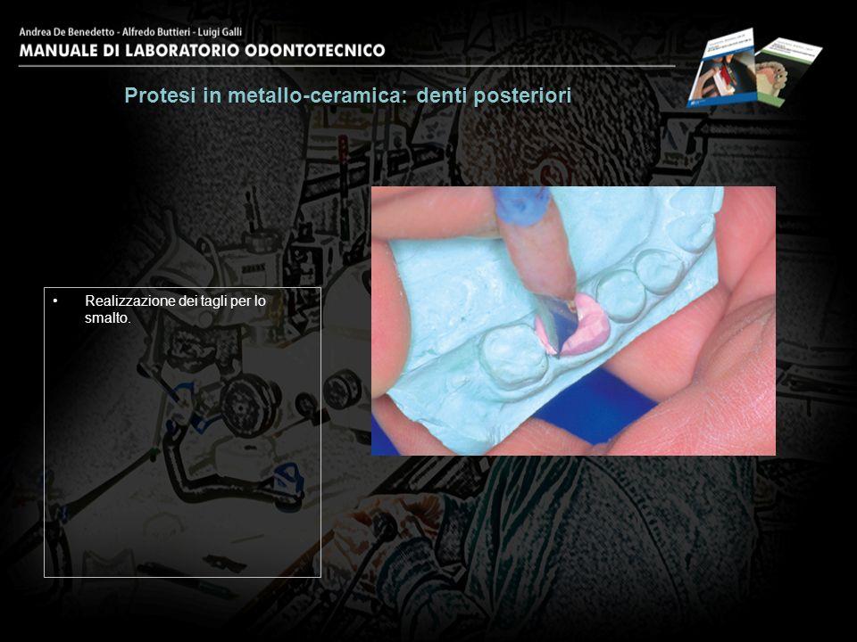 Realizzazione dei tagli per lo smalto. Protesi in metallo-ceramica: denti posteriori 16