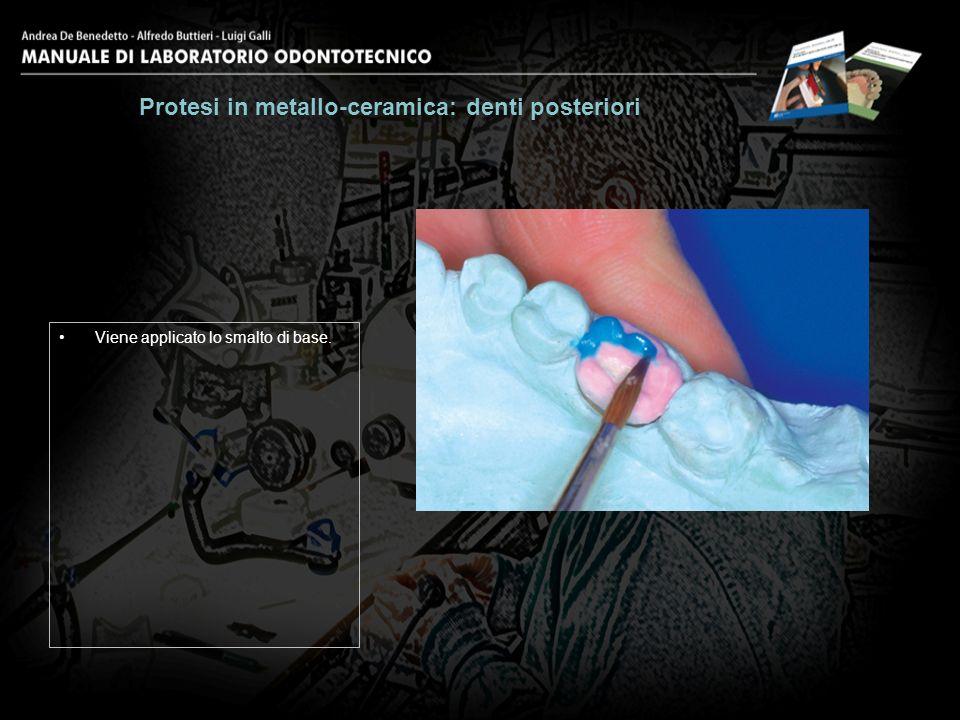 Viene applicato lo smalto di base. Protesi in metallo-ceramica: denti posteriori 18