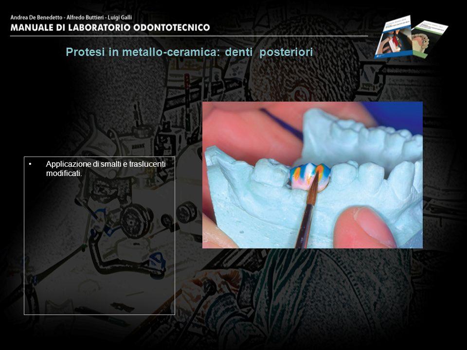 Applicazione di smalti e traslucenti modificati. Protesi in metallo-ceramica: denti posteriori 19