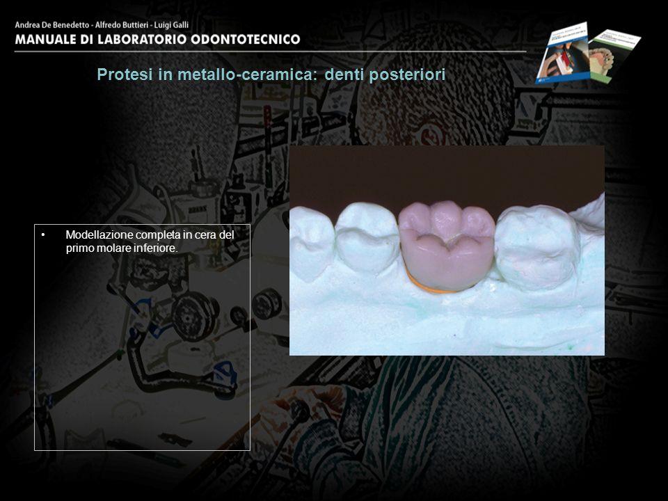 Modellazione completa in cera del primo molare inferiore. Protesi in metallo-ceramica: denti posteriori 2