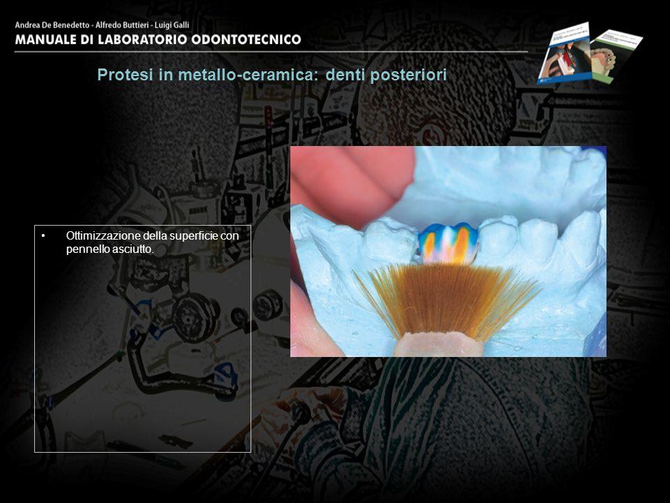 Ottimizzazione della superficie con pennello asciutto. Protesi in metallo-ceramica: denti posteriori 20