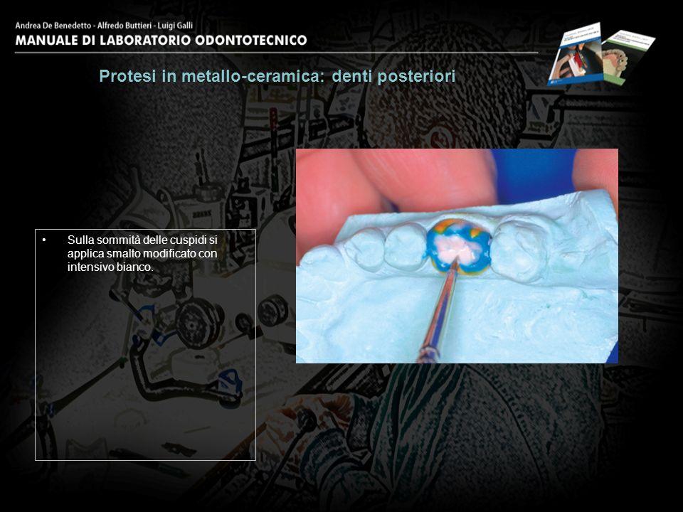 Sulla sommità delle cuspidi si applica smalto modificato con intensivo bianco. Protesi in metallo-ceramica: denti posteriori 22