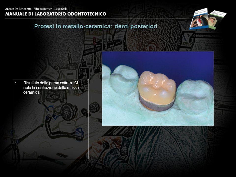 Risultato della prima cottura. Si nota la contrazione della massa ceramica. Protesi in metallo-ceramica: denti posteriori 25