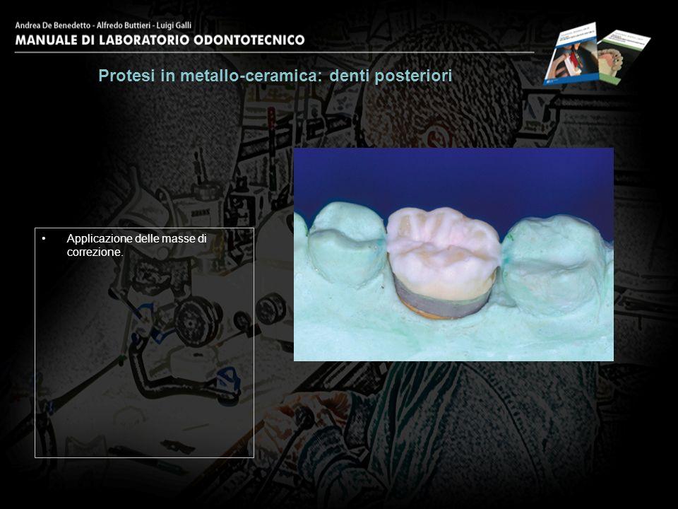 Applicazione delle masse di correzione. Protesi in metallo-ceramica: denti posteriori 27