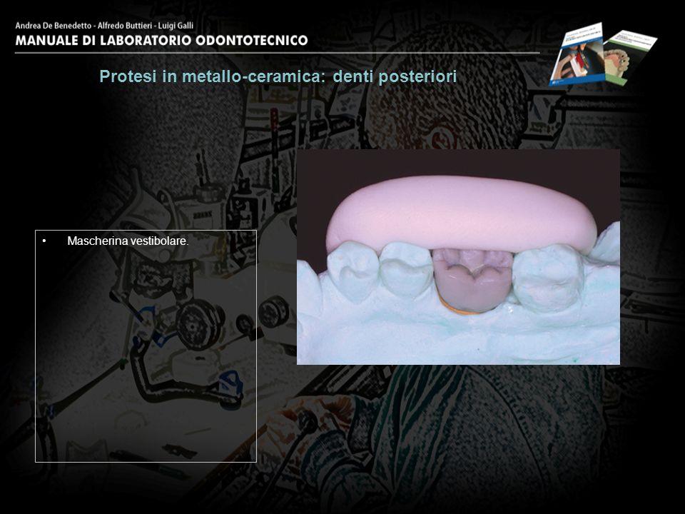 Mascherina vestibolare. Protesi in metallo-ceramica: denti posteriori 3