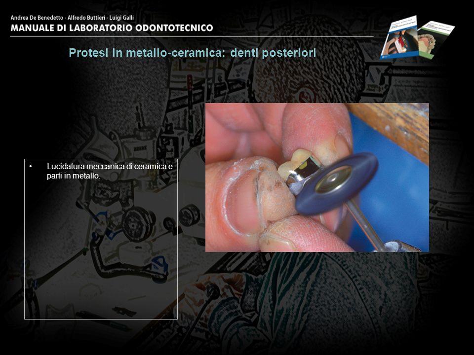 Lucidatura meccanica di ceramica e parti in metallo. Protesi in metallo-ceramica: denti posteriori 30