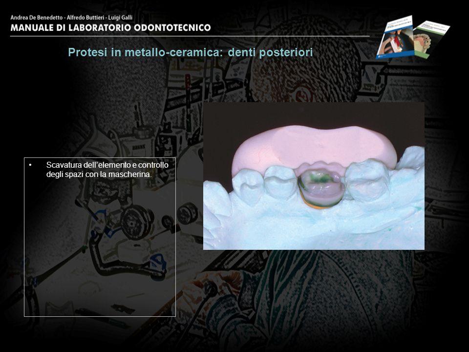 Dentina e colletto ultimati. Protesi in metallo-ceramica: denti posteriori 15