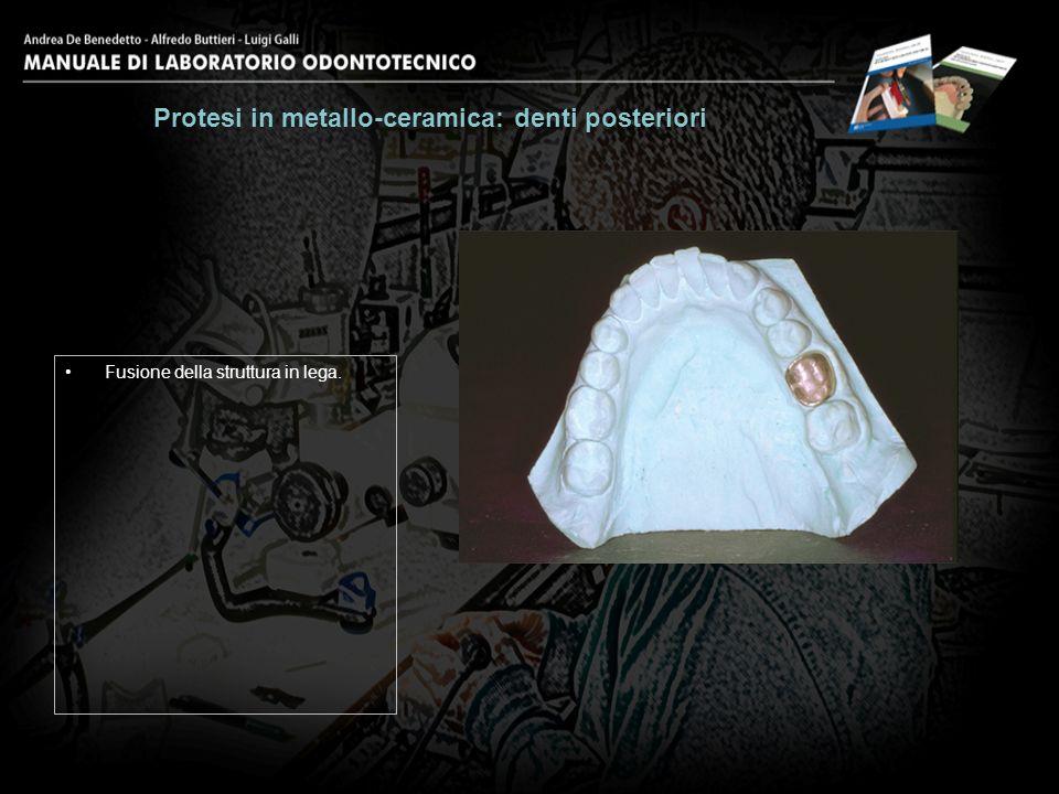 Rifinitura del dispositivo con frese diamantate. Protesi in metallo-ceramica: denti posteriori 26