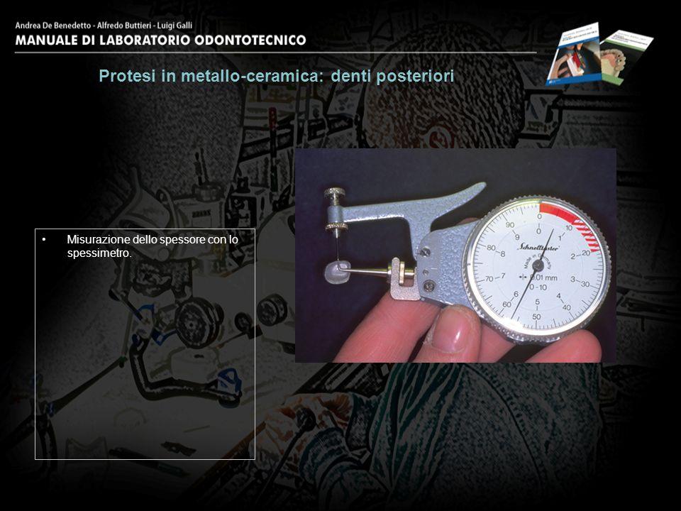 Misurazione dello spessore con lo spessimetro. Protesi in metallo-ceramica: denti posteriori 6