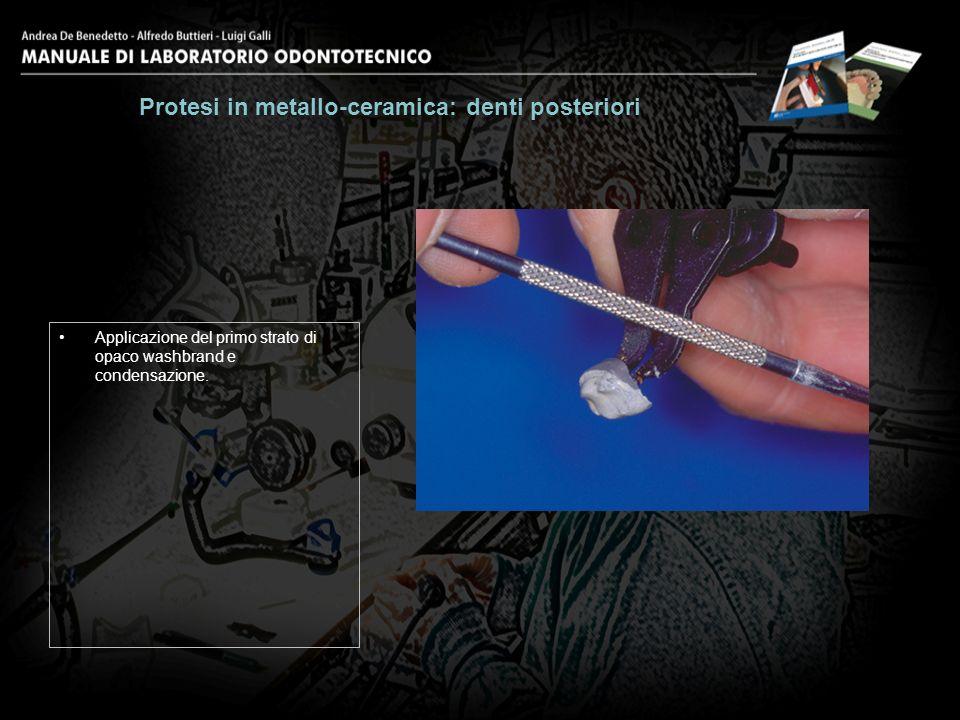 Applicazione del primo strato di opaco washbrand e condensazione. Protesi in metallo-ceramica: denti posteriori 8