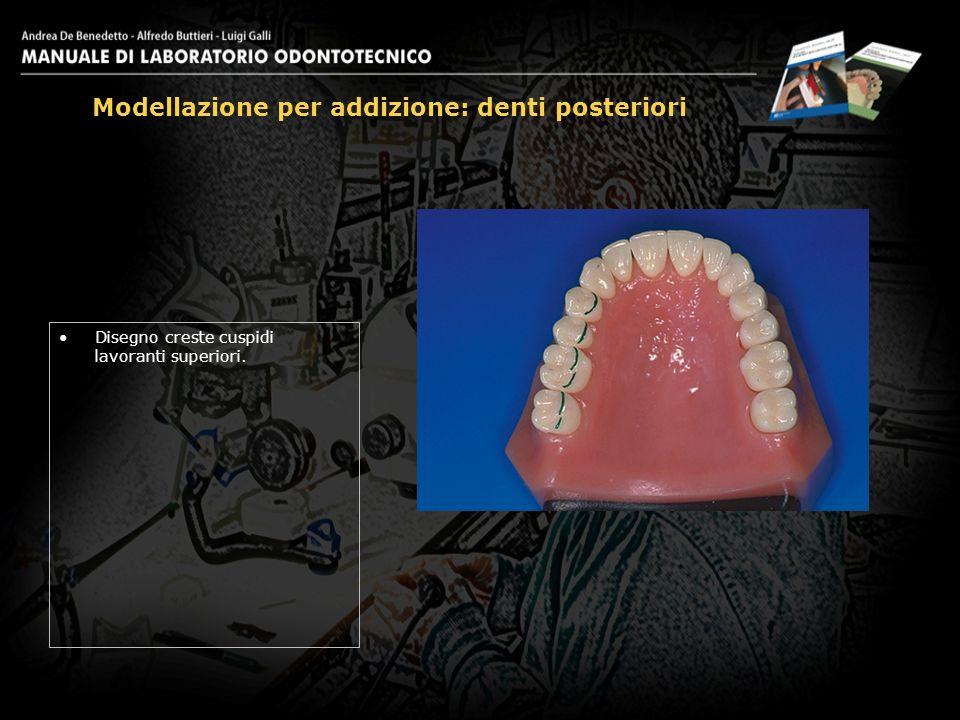 Disegno creste cuspidi lavoranti superiori. Modellazione per addizione: denti posteriori 1