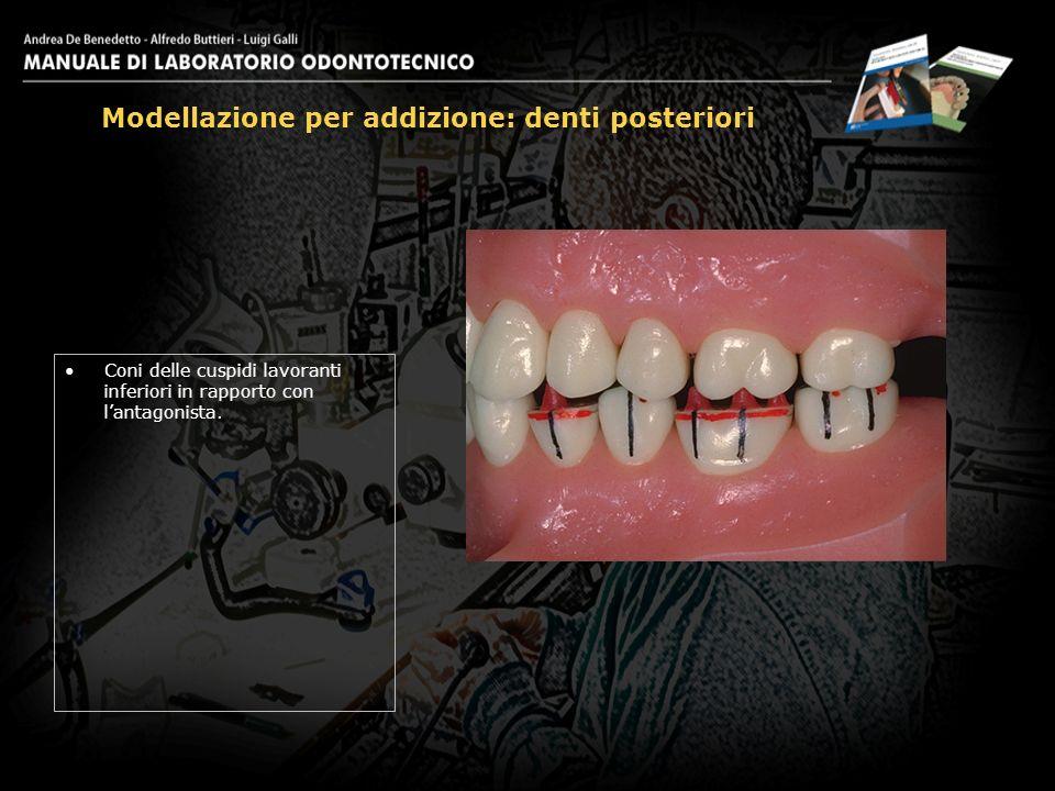 Coni delle cuspidi lavoranti inferiori in rapporto con lantagonista. Modellazione per addizione: denti posteriori 11