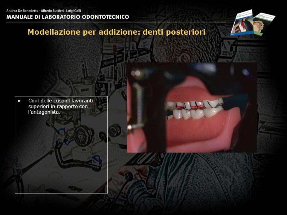 Coni delle cuspidi lavoranti superiori in rapporto con lantagonista. Modellazione per addizione: denti posteriori 12