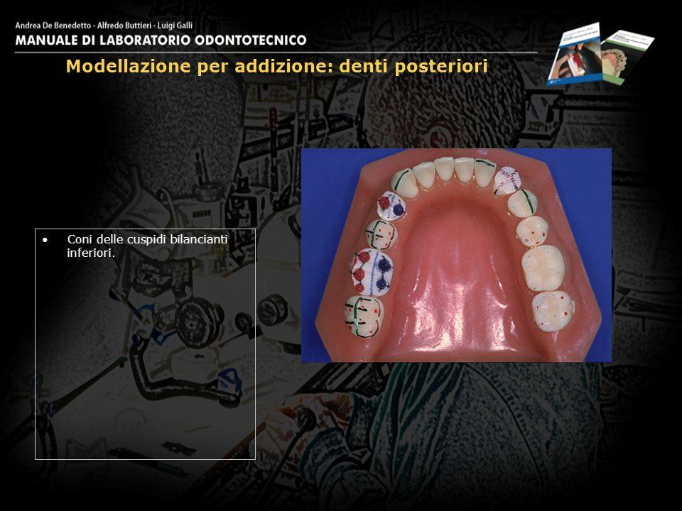 Coni delle cuspidi bilancianti inferiori. Modellazione per addizione: denti posteriori 13
