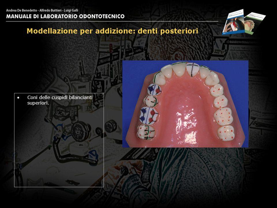Coni delle cuspidi bilancianti superiori. Modellazione per addizione: denti posteriori 14